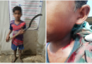 12 Year Old Arrested After Scythe Attack